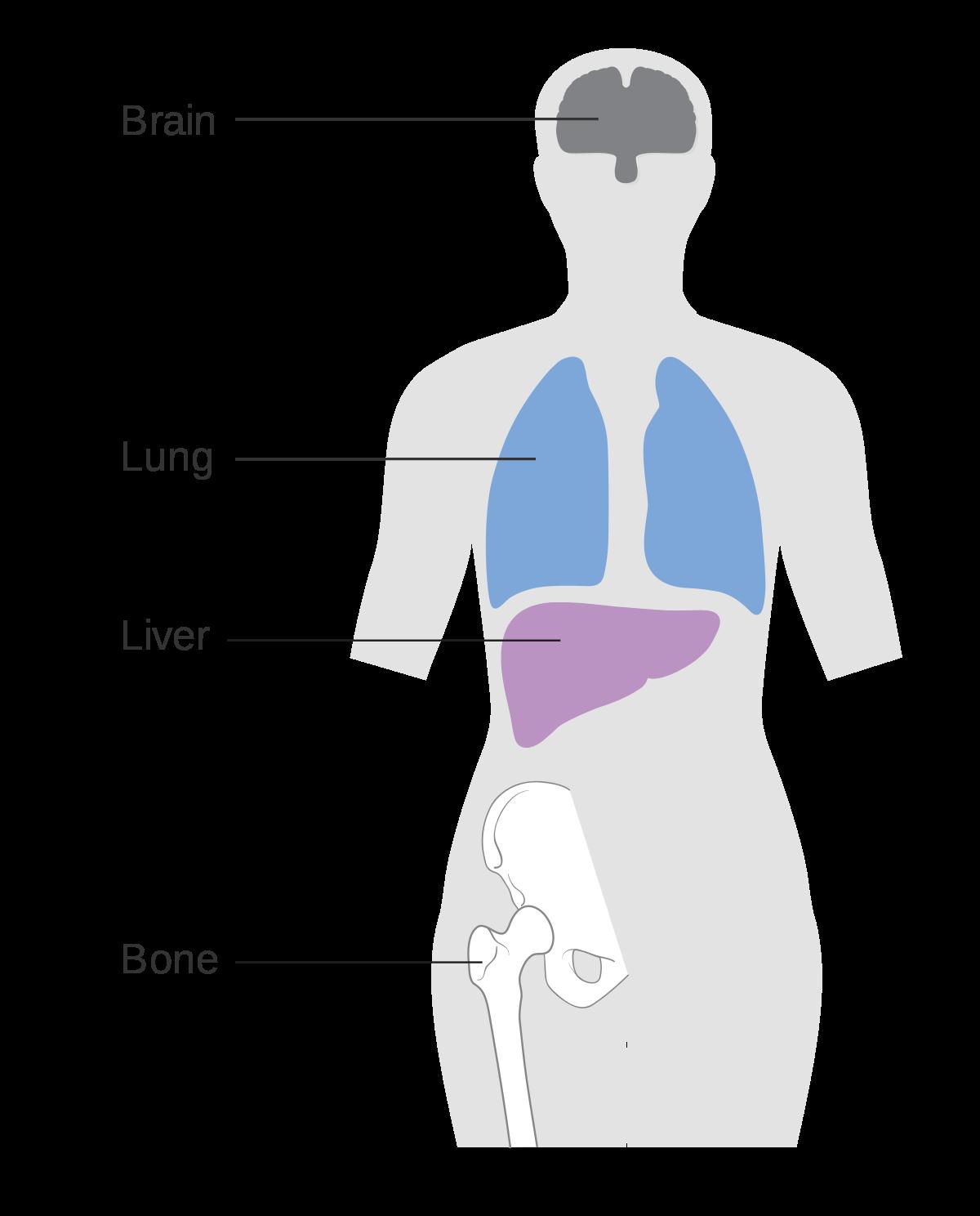 Cancerul mamar metastatic