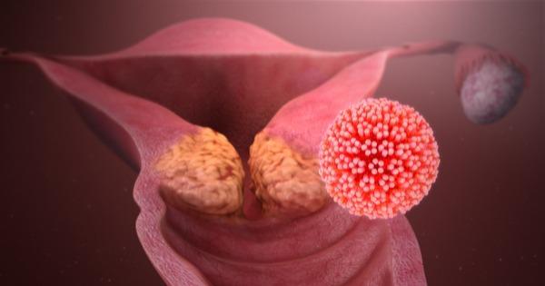 hpv e cancer de colo uterino)