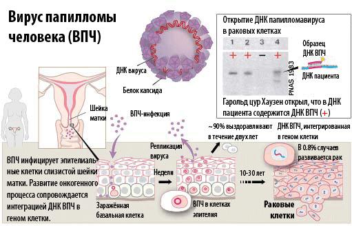 hpv papiloma virus