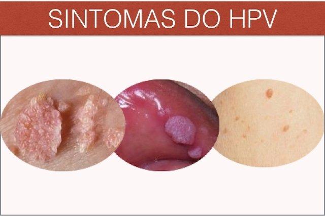 hpv verruga genital tratamento)