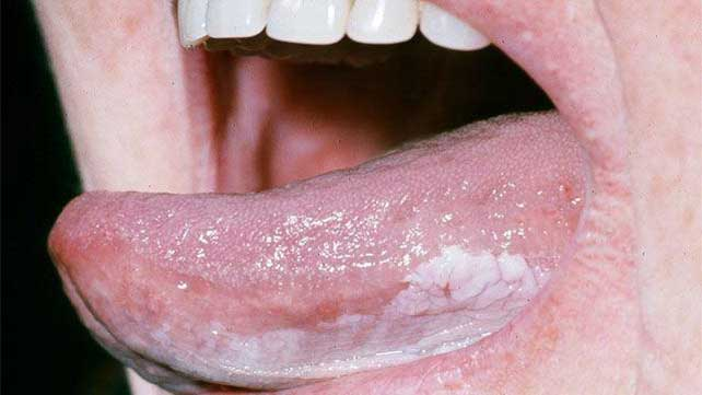 Michael Douglas: Am facut cancer la gat din cauza sexului oral