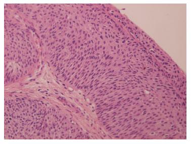 papiloma urotelial benigno los oxiuros desaparecen solos