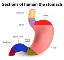 cancerul gastric romedic