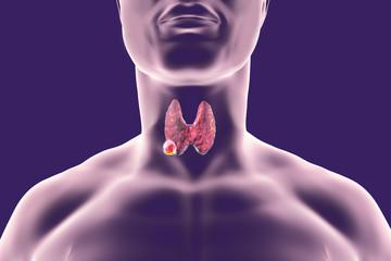 cancerul de glanda tiroida