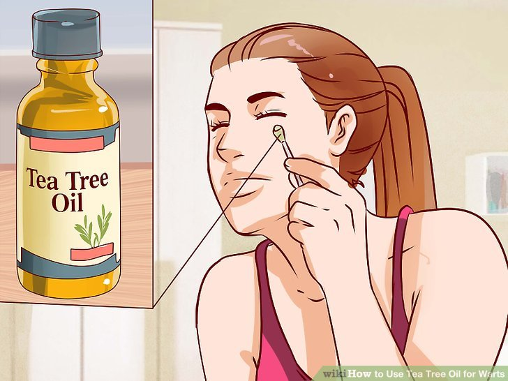 hpv treatment tea tree oil