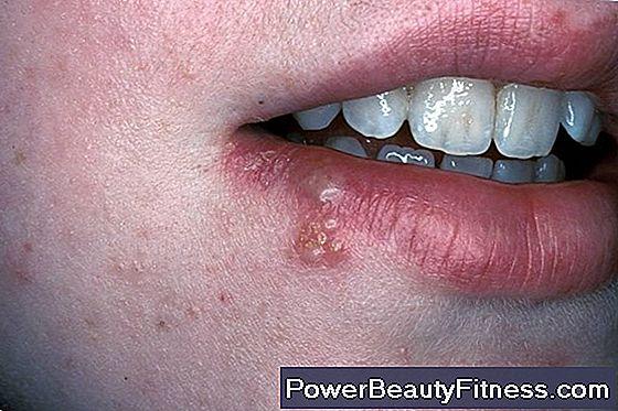 papilloma sintomi gola)