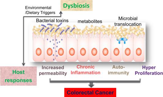 cancer and intestinal flora