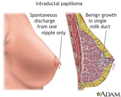 papillomas definition)