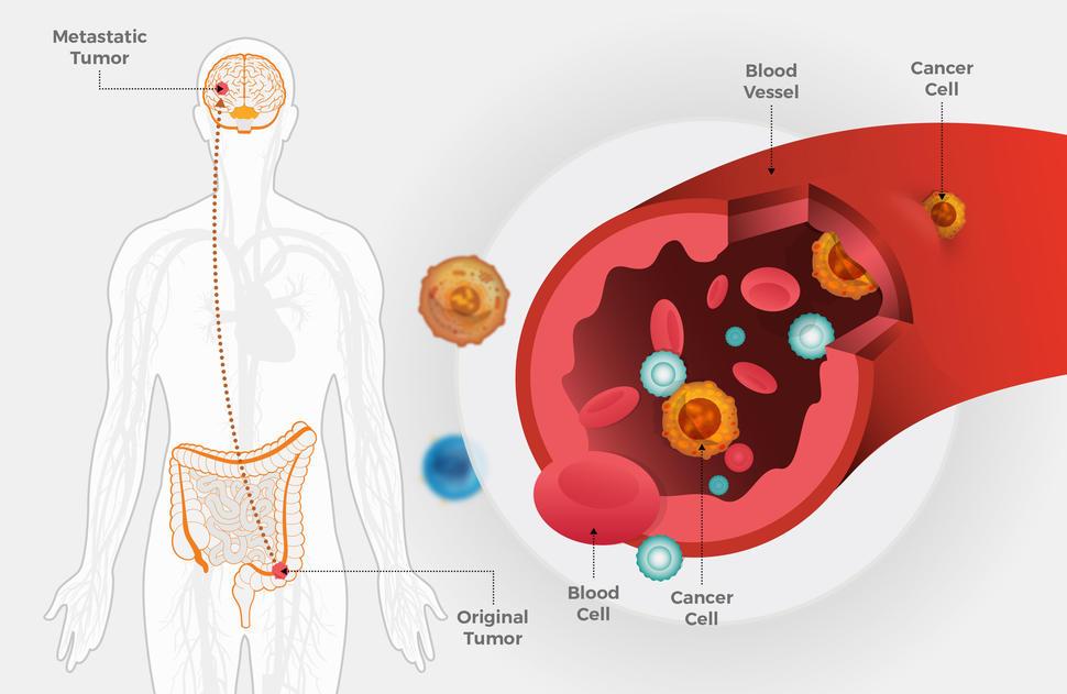 rectal cancer with metastasis)