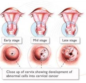 hpv cancer symptoms throat