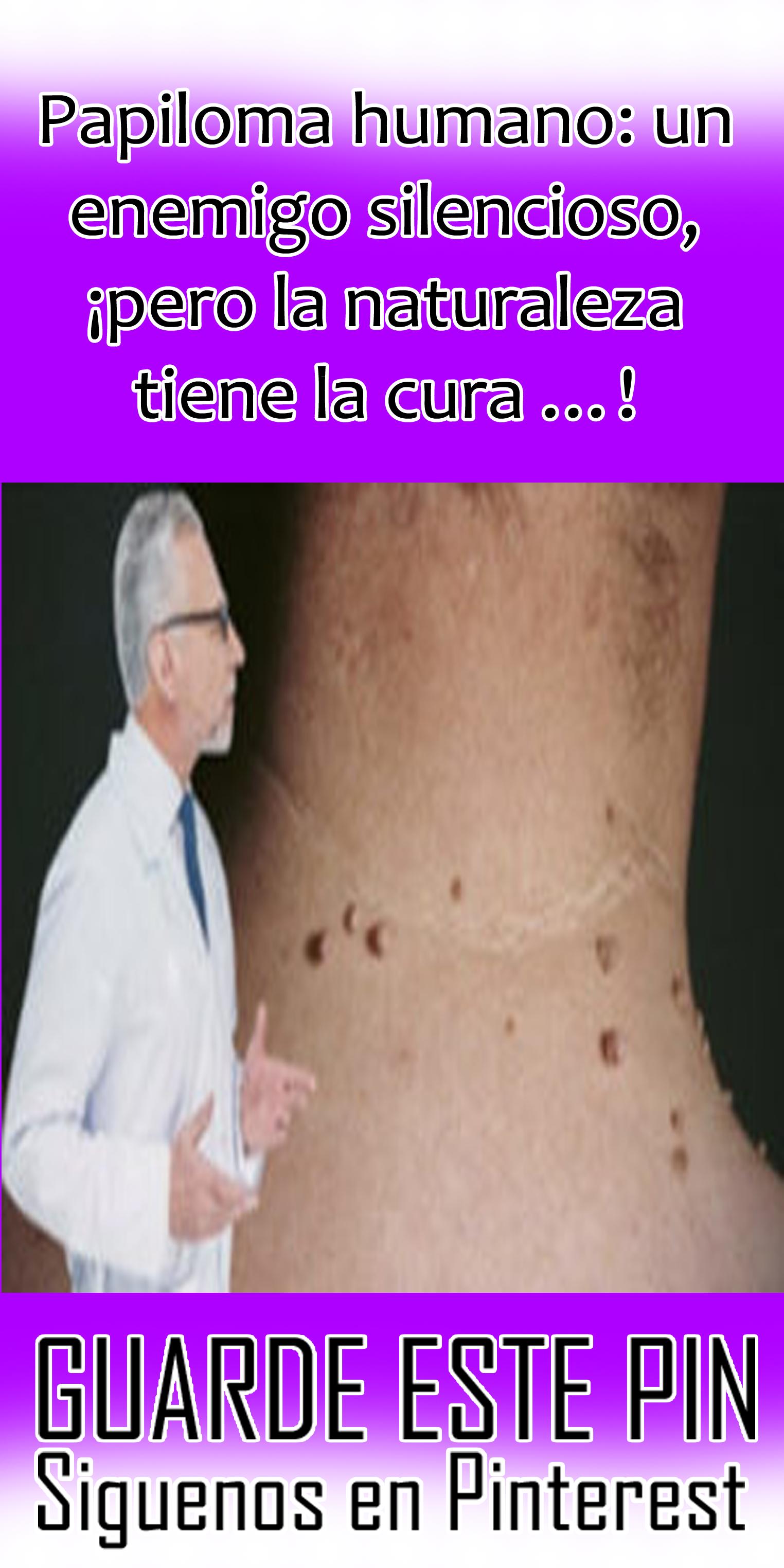 virus papiloma humano mujeres cura