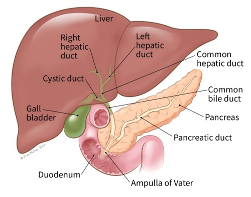 pancreatic cancer what to expect