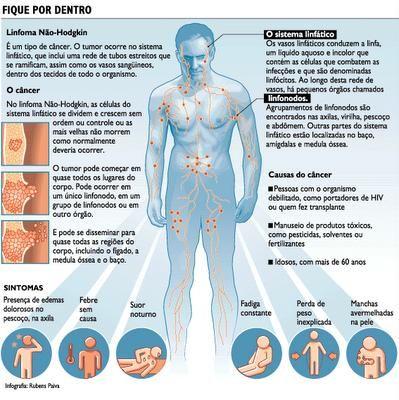 cancer de hodgkin en ninos