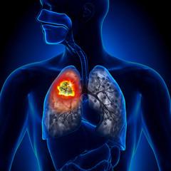 cancerul la plamani simptome
