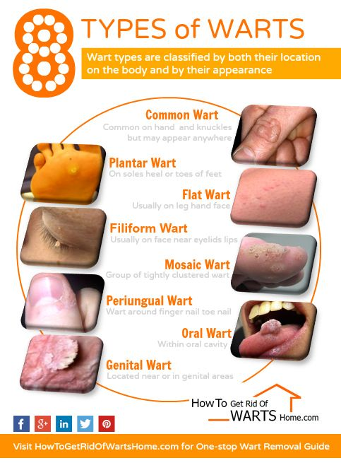 warts on hands symptoms hpv virus vaccination