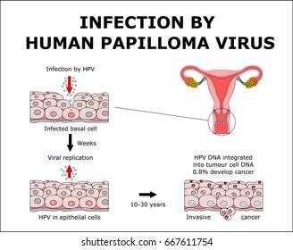reason for hpv infection papillomavirus pendant la grossesse