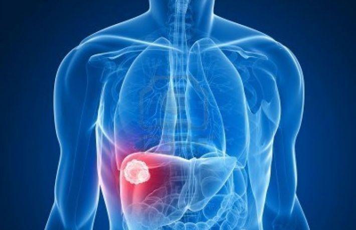 cancer de ficat speranta de viata