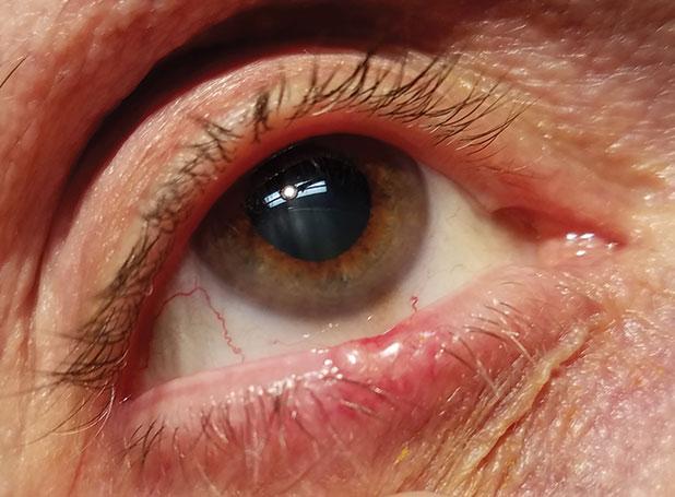 papiloma removal eyelids