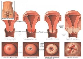 cancerul de col uterin amg
