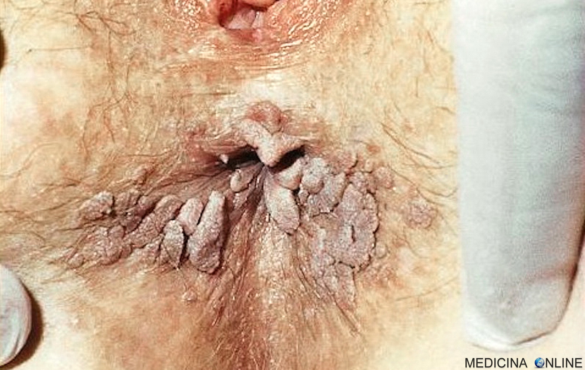 esophageal papilloma cause
