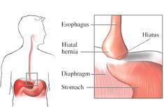 cancer gastric vindecat hpv warzen finger