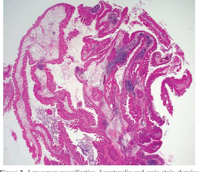 exophytic papilloma)