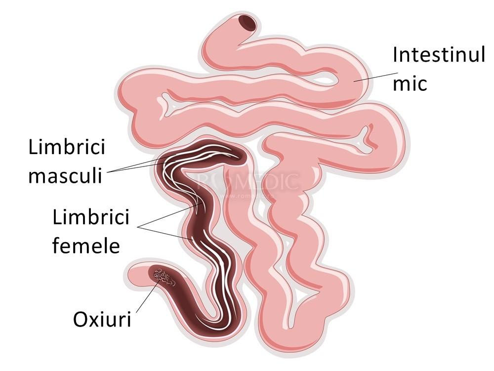 viermi oxiuri simptome papilloma virus da sintomi