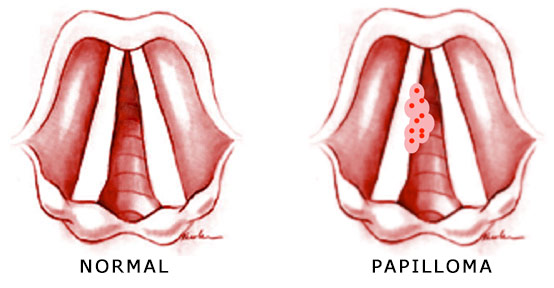 throat cancer from human papillomavirus)