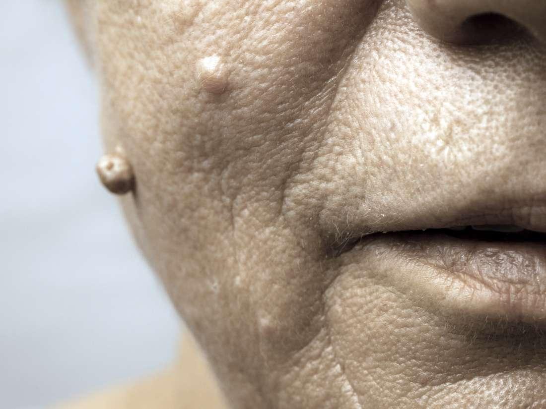hpv face warts definition de papillomavirus humains
