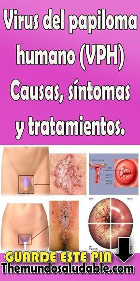 virus del papiloma humano causas)