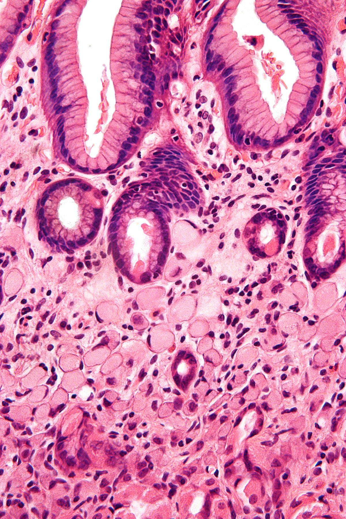 abdominal cancer cells)
