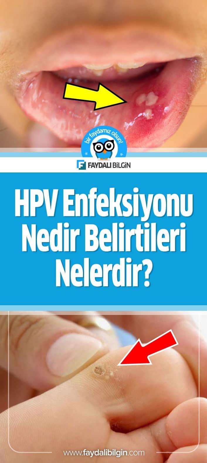 hpv virusu tedavisi kad?n)