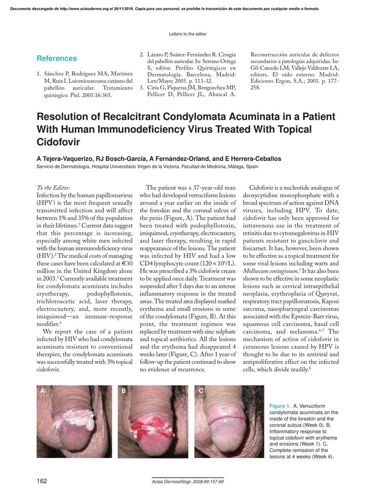 dysbiosis rosacea cancer plamani transplant