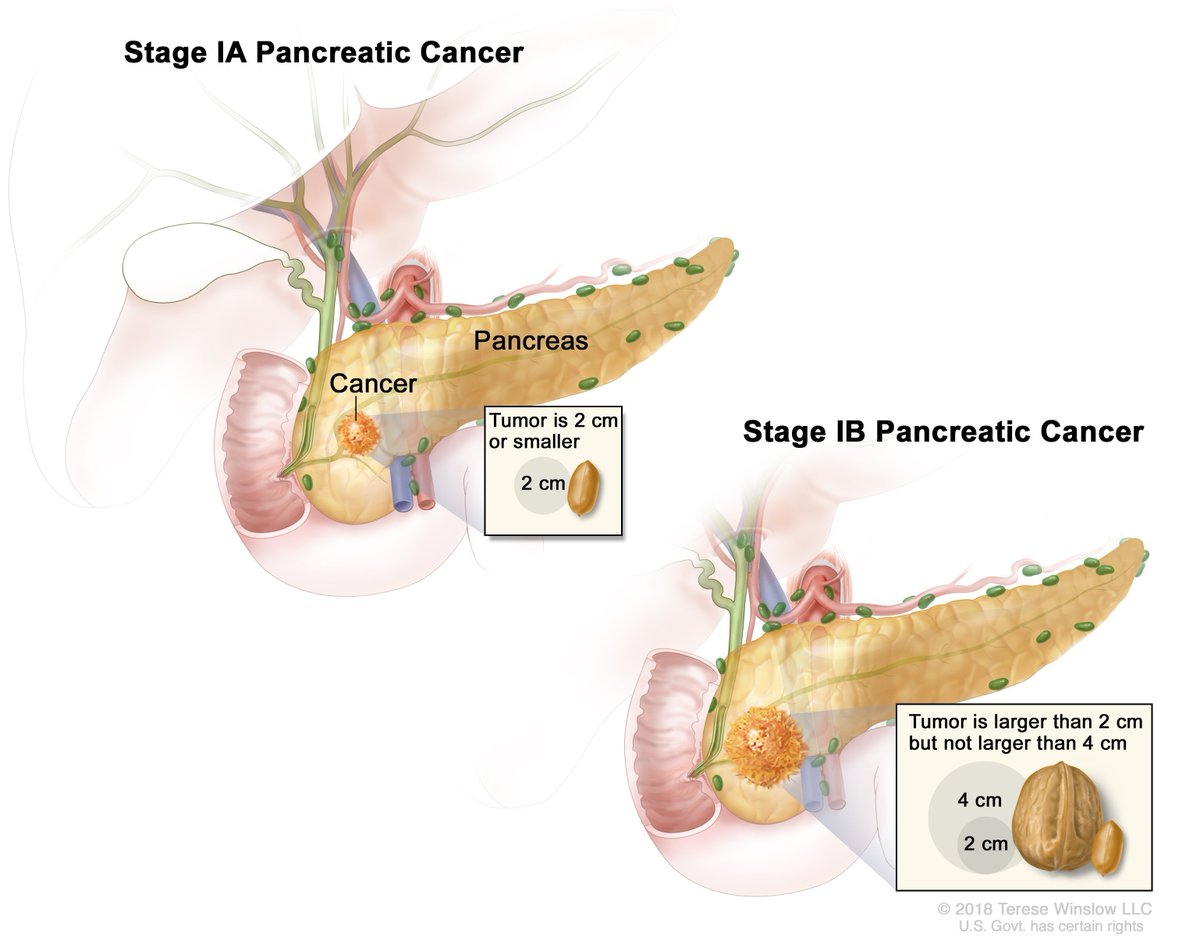 Neoplasm de pancreas – principalele tipuri și cauze