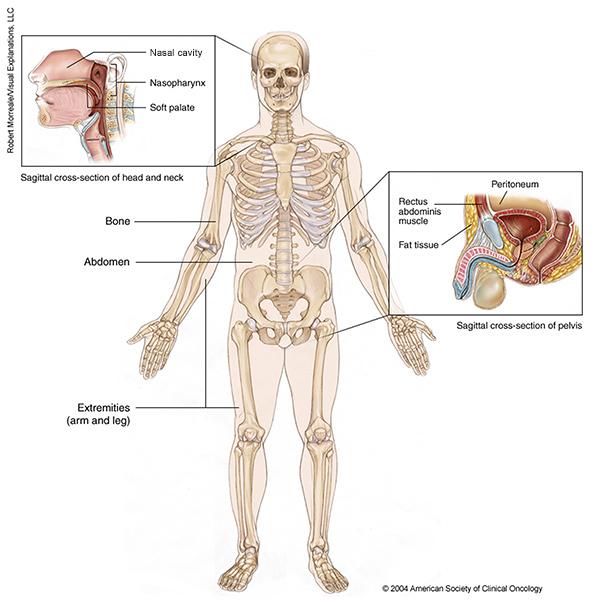 cancer tissue - Traducere în română - exemple în engleză | Reverso Context
