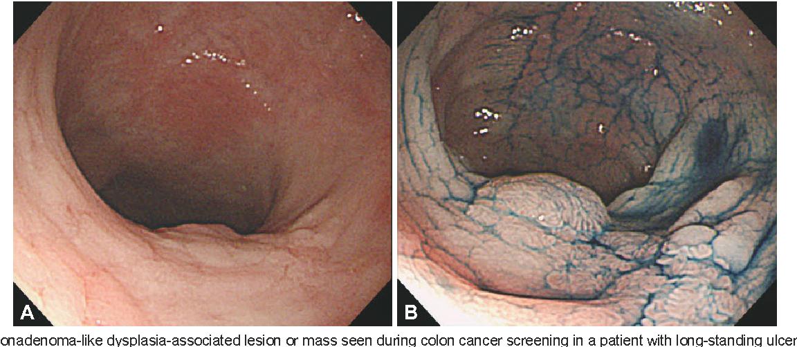cancer colon ulcer)