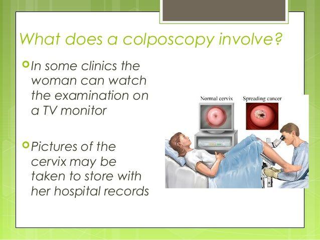 papilloma virus e colposcopia