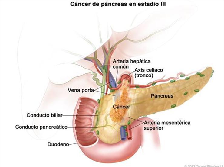 cancer de pancreas en la cabeza