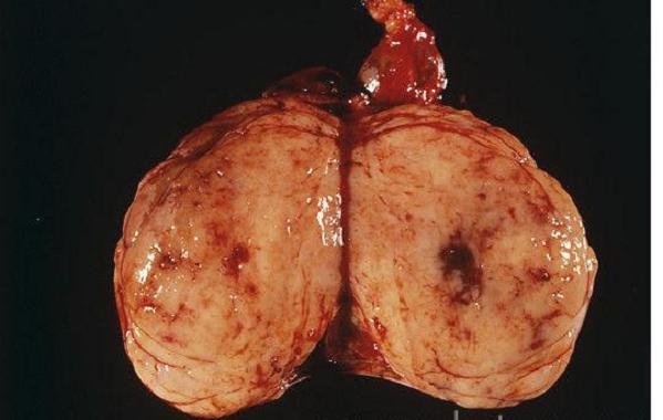 testicular cancer kill you