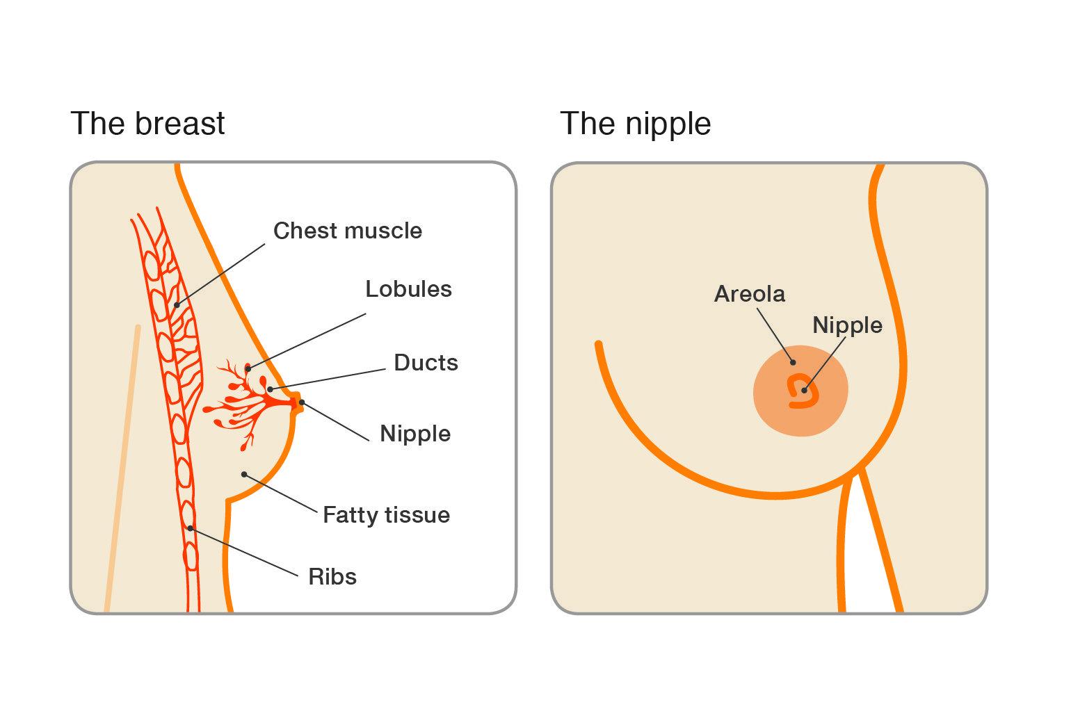intraductal papilloma be