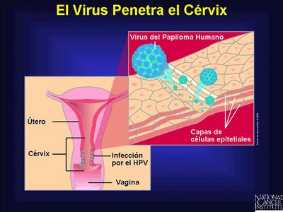 virus del papiloma humano complicaciones hpv removal near me