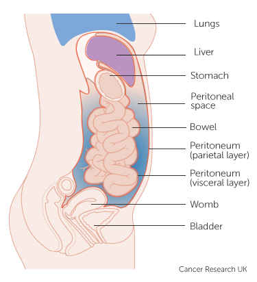 cancer abdominal fluid)