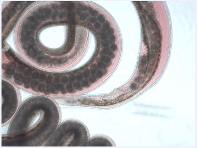 helminth worms pictures)