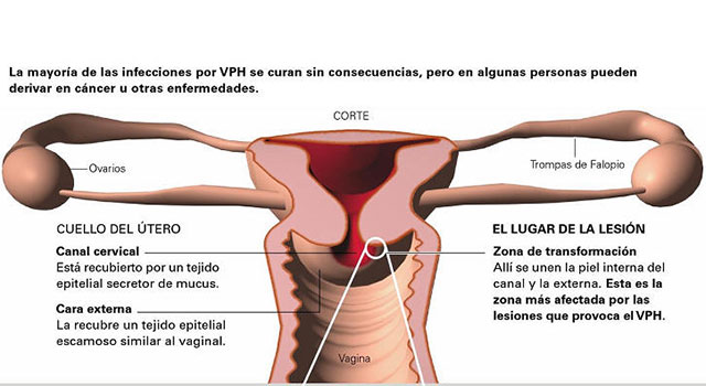 el virus del papiloma y el embarazo)