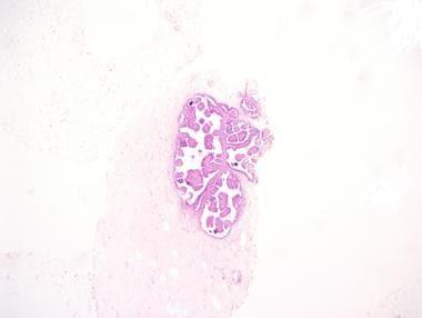ductal papilloma patient uk)