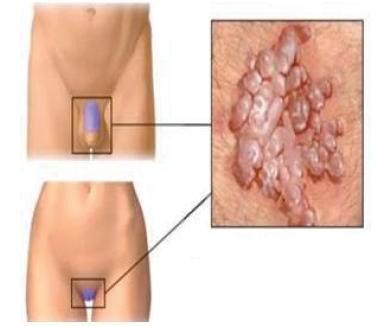 hpv utero contagio