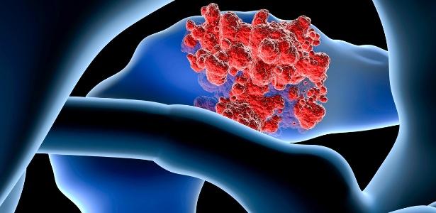 cancer de pancreas grau 3 cancer metastatic to liver icd 10