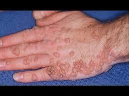 herpes papilloma)
