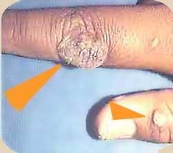 virus del papiloma en brazos