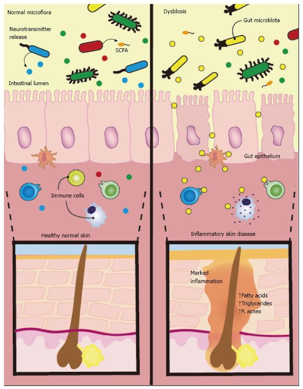 dysbiosis eczema)